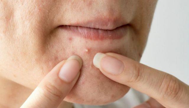 Cicatriz de acne é sempre profunda e pode ser de dois tipos: médico explica