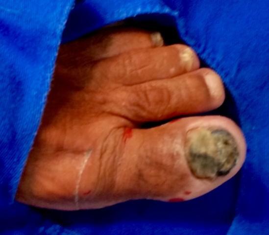 Dezembro laranja conscientiza população sobre câncer de pele