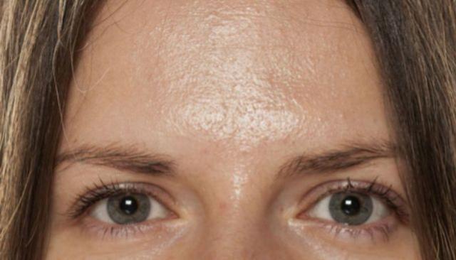 Pessoas com pele oleosa contam com uma vantagem por toda vida que outros não têm