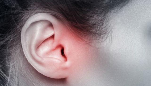 Se cravos no ouvido te incomodam saiba que é assim que você pode preveni-los