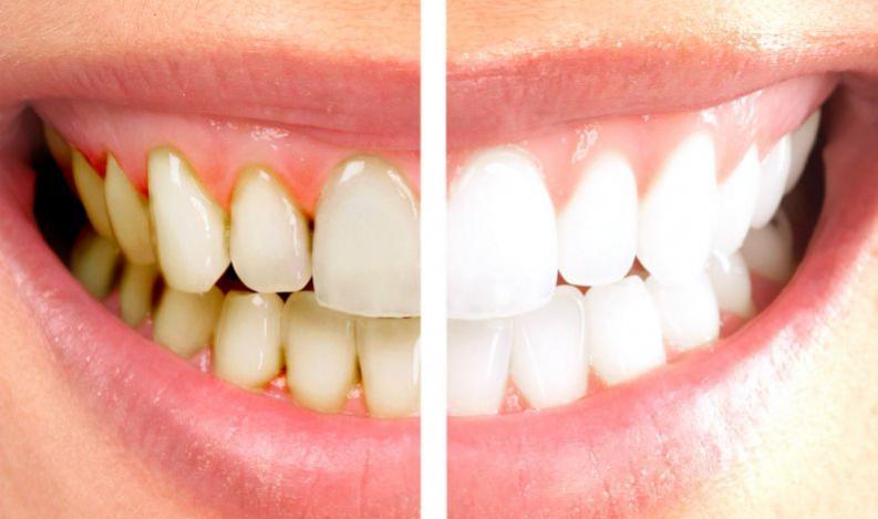 Você sabe quais são os principais inimigos de uma boca saudável? Evite 5 deles
